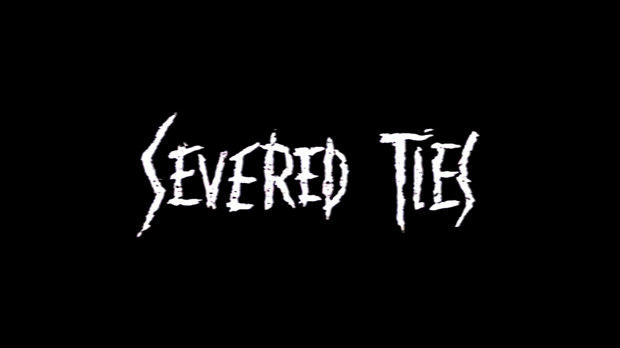 severedties